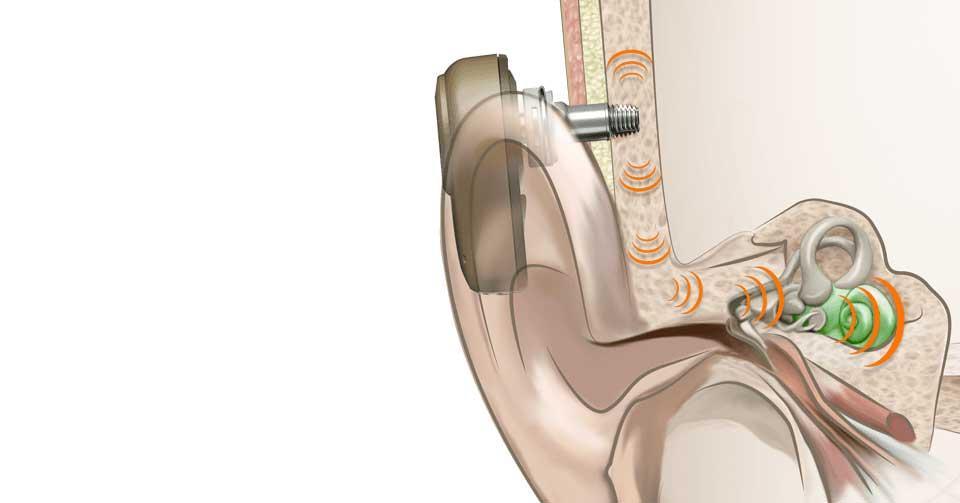 Auriculares-de-conducción-ósea-4